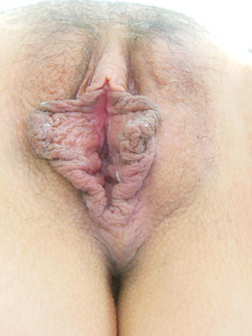 Labiaplasty Before & After Patient #639