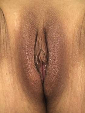 Labiaplasty Before & After Patient #636