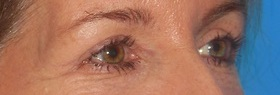Blepharoplasty Before & After Patient #684