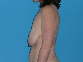 Tummy Tuck Before & After Patient #662