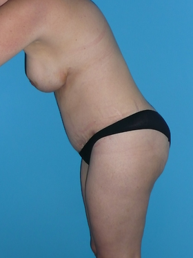 Tummy Tuck Before & After Patient #679