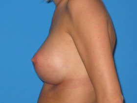 Breast Augmentation Before & After Patient #747