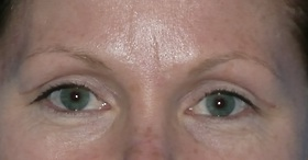 Blepharoplasty Before & After Patient #704