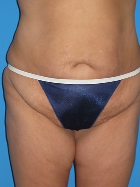 Tummy Tuck Before & After Patient #834