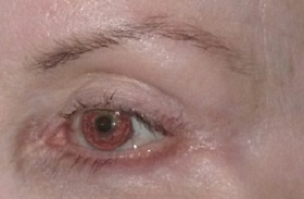 Brow Lift Before & After Patient #709