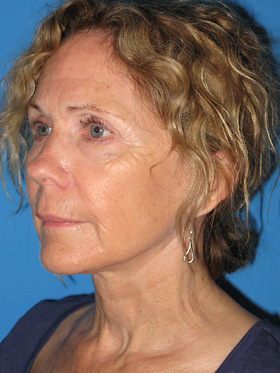 Facelift Before & After Patient #731