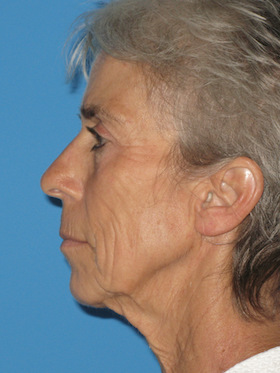 Facelift Before & After Patient #736