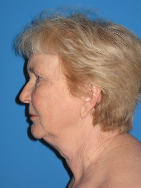 Facelift Before & After Patient #719