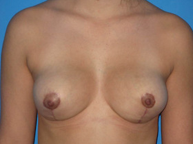 Breast Reduction Before & After Patient #810