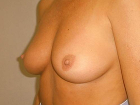 Breast Reconstruction Before & After Patient #799