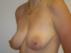 Breast Augmentation Before & After Patient #780