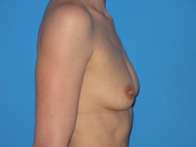 Breast Augmentation Before & After Patient #769