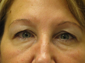 Blepharoplasty Before & After Patient #696