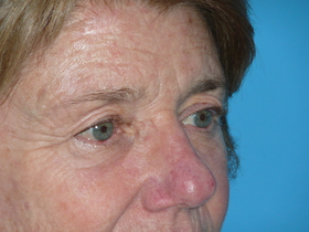 Blepharoplasty Before & After Patient #691