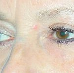 Blepharoplasty Before & After Patient #699