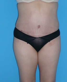 Tummy Tuck Before & After Patient #827