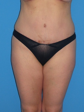 Tummy Tuck Before & After Patient #798