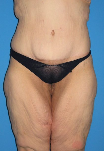 Body Lift Before & After Patient #1249