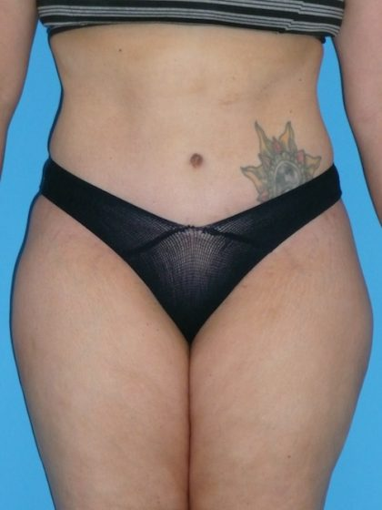 Tummy Tuck Before & After Patient #1321