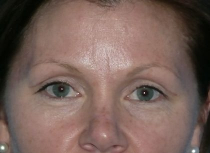 Blepharoplasty Before & After Patient #1394