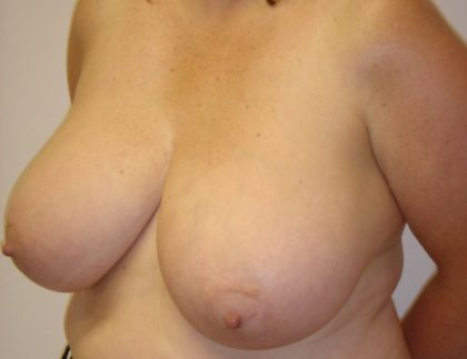 Breast Reduction Before & After Patient #1094