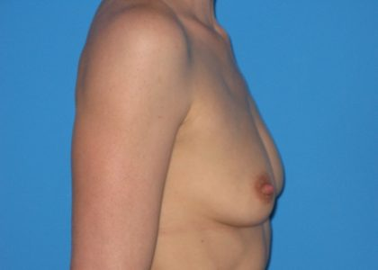 Breast Augmentation Before & After Patient #954