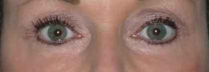 CO2 Laser Before & After Patient #1437