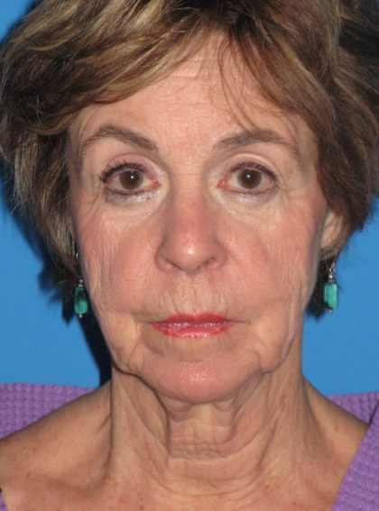 Facelift Before & After Patient #1458