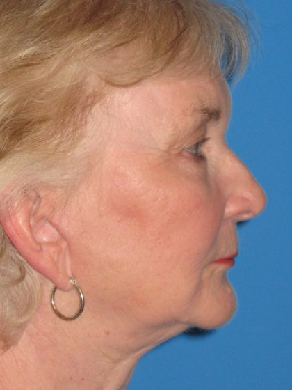 Facelift Before & After Patient #1465