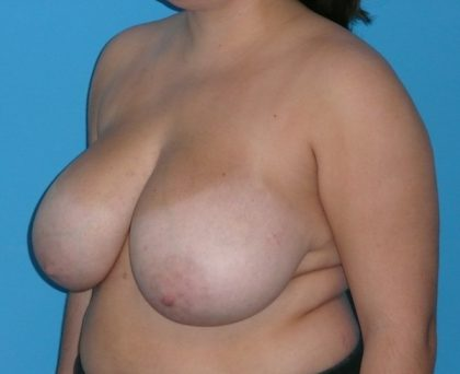 Breast Reduction Before & After Patient #1105
