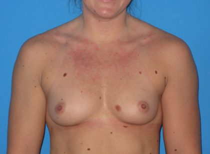 Breast Augmentation Before & After Patient #965