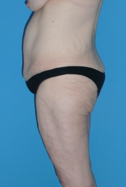 Body Lift Before & After Patient #1256