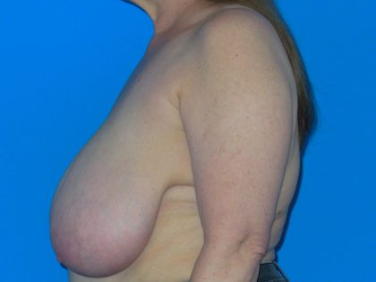 Breast Reduction Before & After Patient #1116