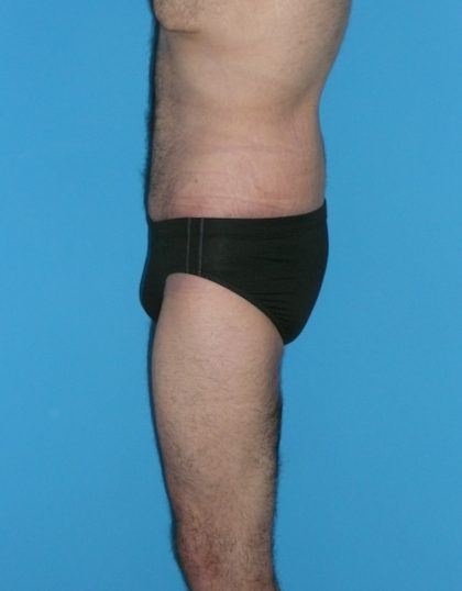Body Lift Before & After Patient #1264