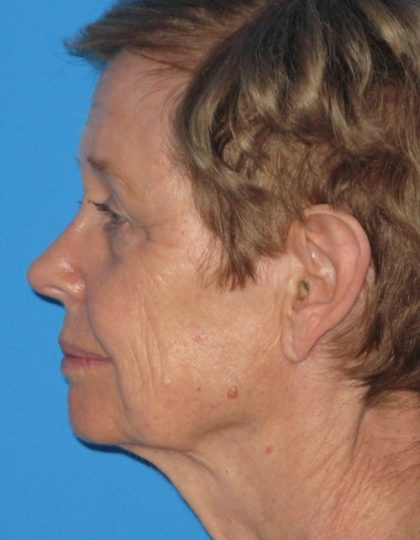Facelift Before & After Patient #1472