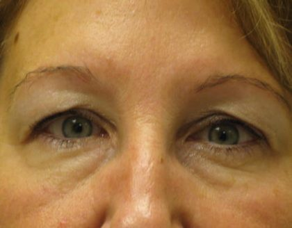 Blepharoplasty Before & After Patient #1402