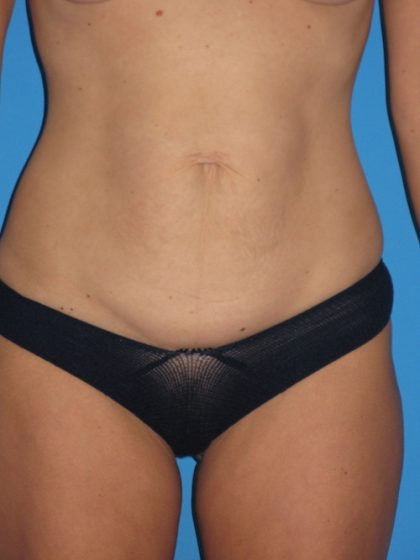 Tummy Tuck Before & After Patient #1334