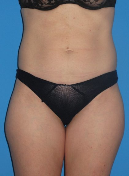 Liposuction Before & After Patient #1289