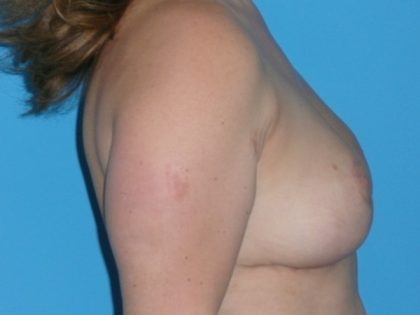 Breast Reduction Before & After Patient #1128