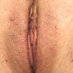 Labiaplasty Before & After Patient #1502
