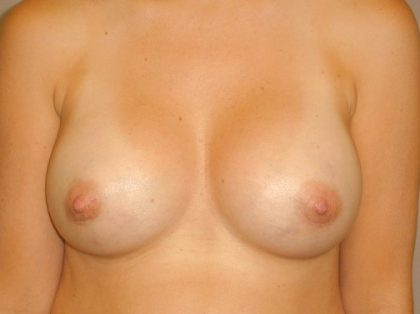 Breast Augmentation Before & After Patient #1016