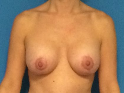 Breast Augmentation with Lift Before & After Patient #1063