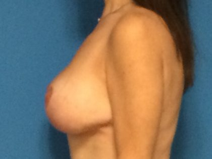 Breast Augmentation with Lift Before & After Patient #1072