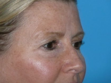 Blepharoplasty Before & After Patient #1405