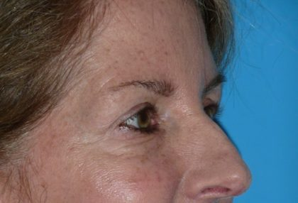 Blepharoplasty Before & After Patient #1412
