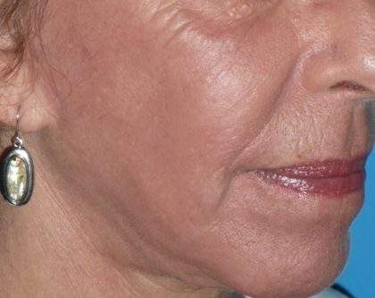 CO2 Laser Before & After Patient #1445