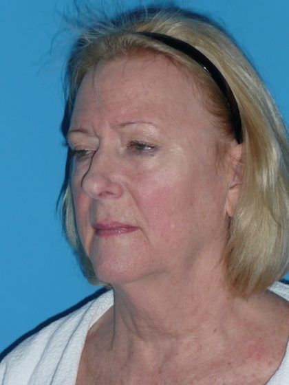 Facelift Before & After Patient #1486