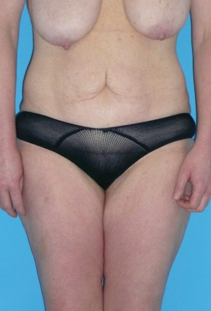 Tummy Tuck Before & After Patient #1339