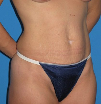 Tummy Tuck Before & After Patient #1352