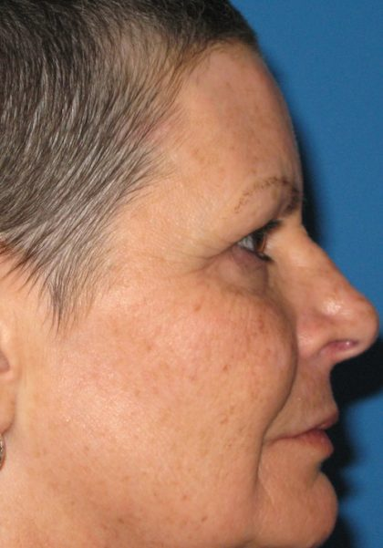 CO2 Laser Before & After Patient #1448
